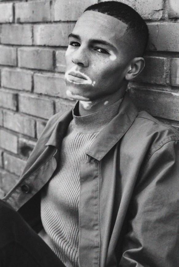 Normalized Vitiligo Is The Way Forward